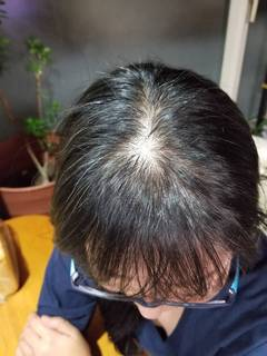 髪の毛1.JPG