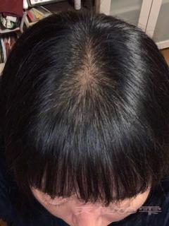 髪の毛2.JPG